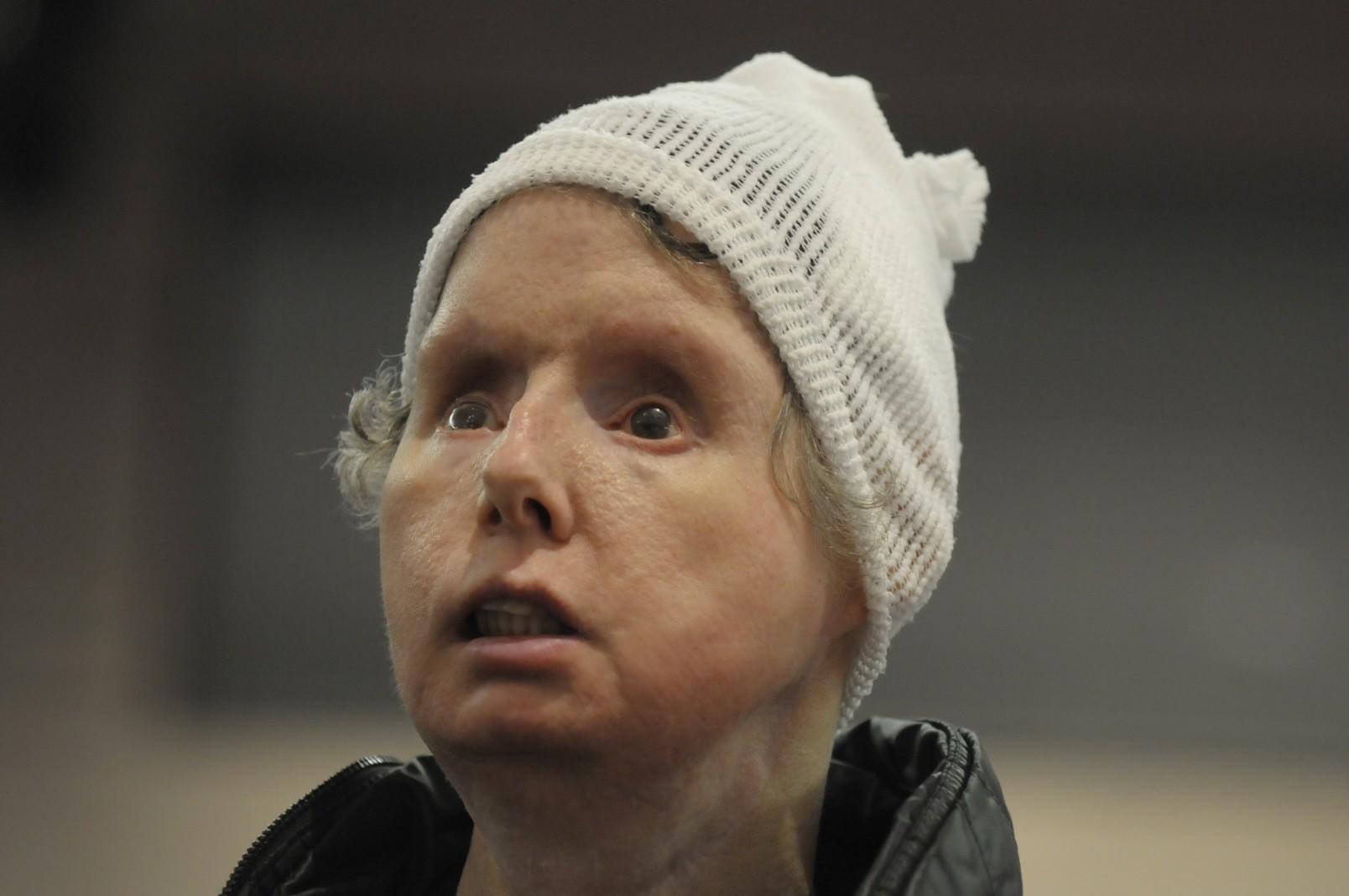 Chimp Attack Victim Charla Nash Criticizes State: 'Why